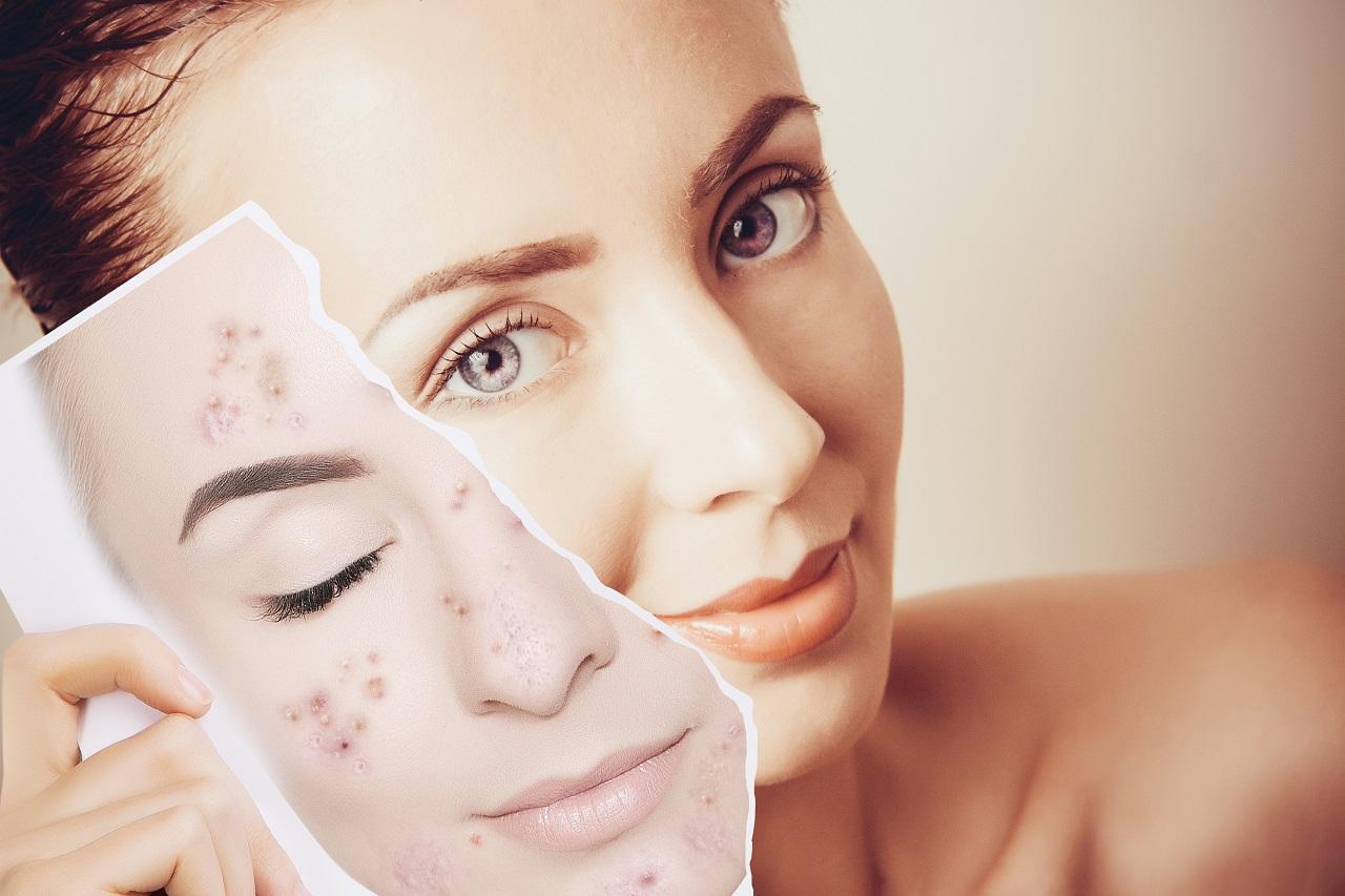 acne-free skin