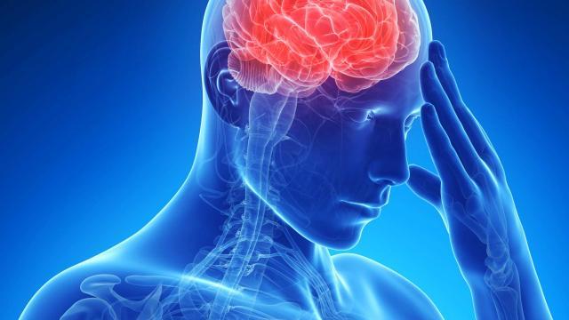brain-headache-migraine