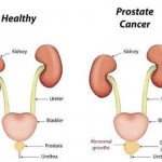 You are as 'Old' as your Prostate