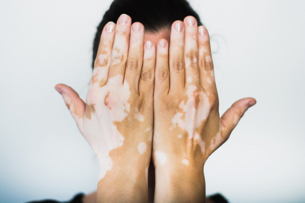 Light and White Skin Patches? All You Need to Know About Vitiligo ...