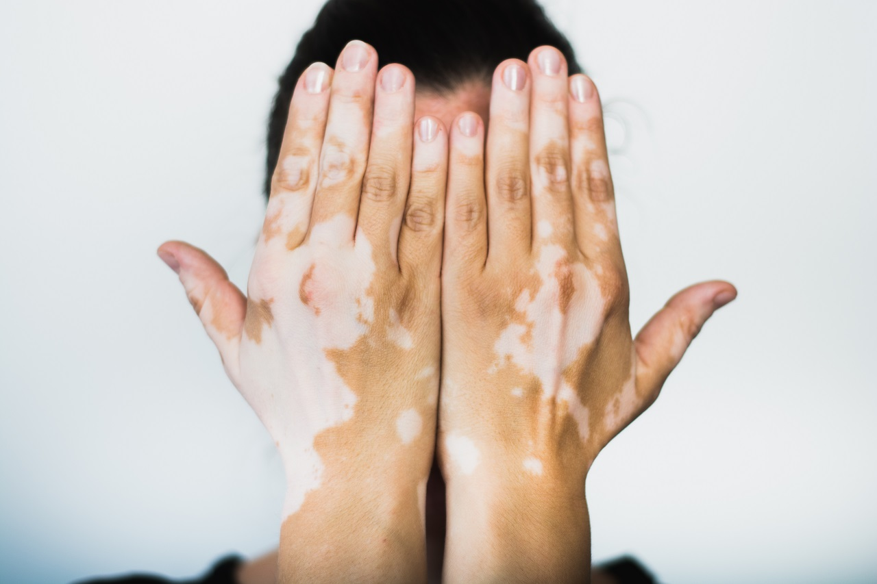 Light And White Skin Patches All You Need To Know About Vitiligo Goqii