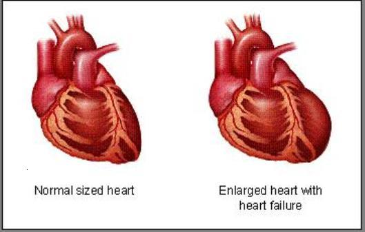 heart-failure2