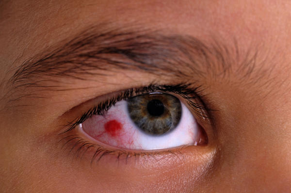 Tips to protect yourself from allergic conjunctivitis this monsoon