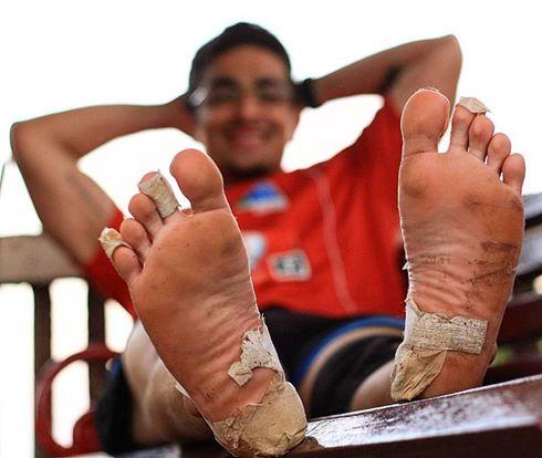 ranveer-blisters