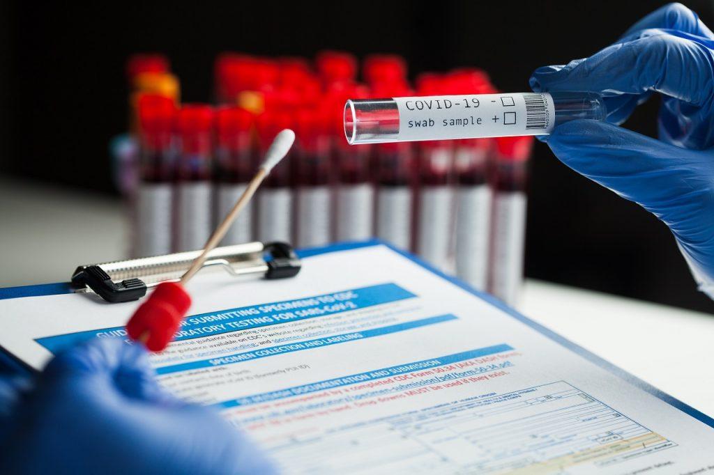 RT PCR Tests Negative