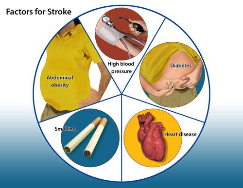 stroke-factors
