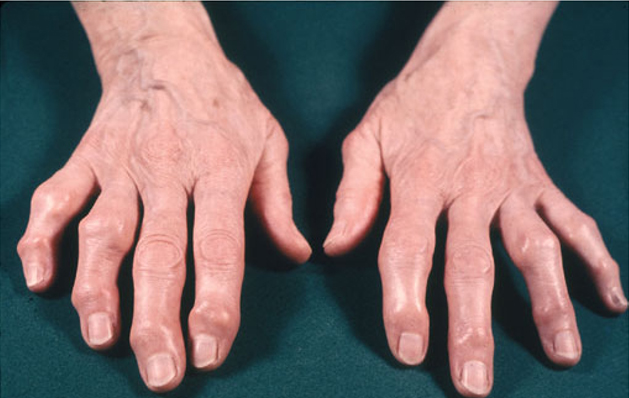 Degenerative arthritis in the thumb