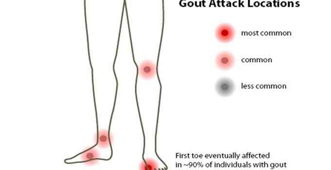 how to get rid of gout fast high uric acid with no symptoms uric acid urine test results
