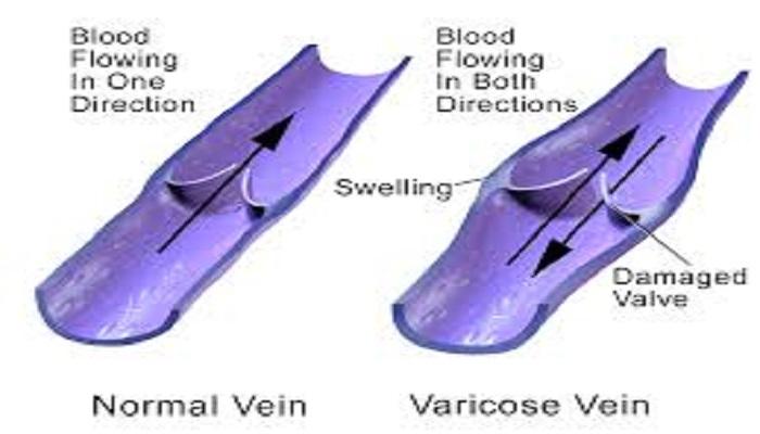 vericose veins 1